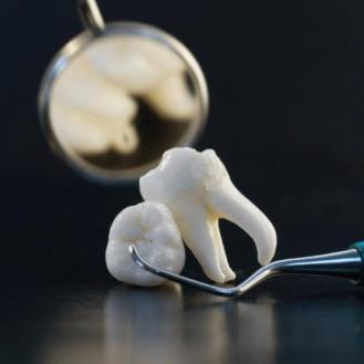 без пломбирования Уникальная методика естественного наращивания и лечения зубов