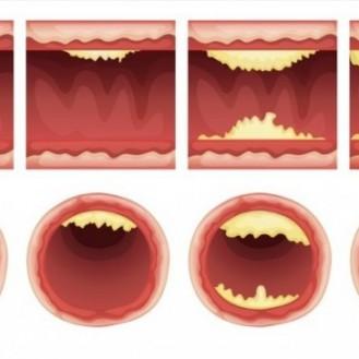 10 продуктов которые прочистят ваши артерии и защитят от сердечного приступа