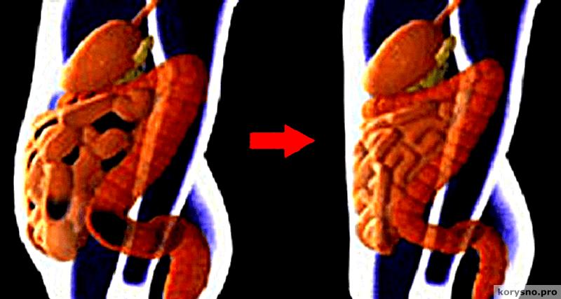 Как убрать с живота 5-7 кило токсинов