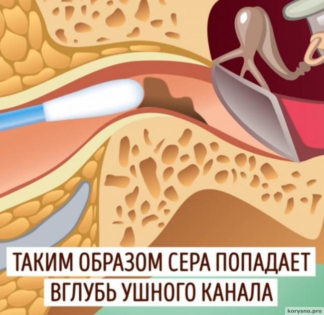 Почему нельзя чистить уши ватными палочками2