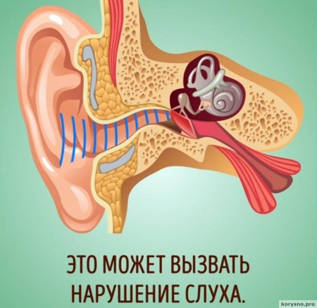 Почему нельзя чистить уши ватными палочками4