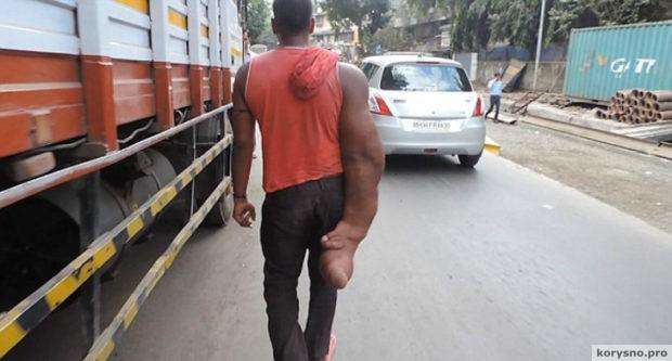 Индийца с огромной рукой родственники выгнали из дома, окрестив порождением дьявола