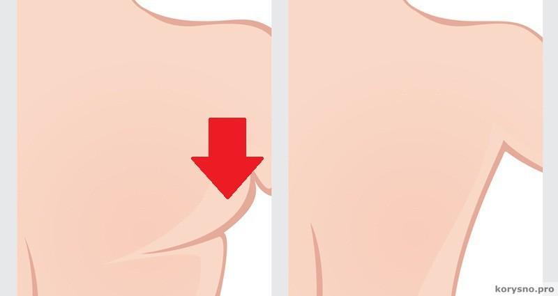 7 упражнений, чтобы подтянуть кожу в области бикини