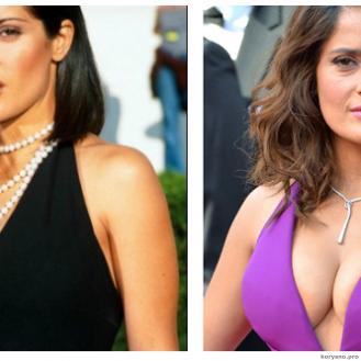 10 голливудских знаменитостей с самой дорогой искусственной грудью