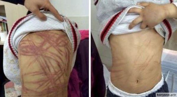Учительница обнаружила шрамы на теле 9-летнего мальчика. Она поверить не могла, КТО это сделал!