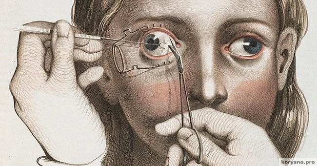 Как лечили людей в XIX веке. 12 иллюстраций, которые по-настоящему шокируют!