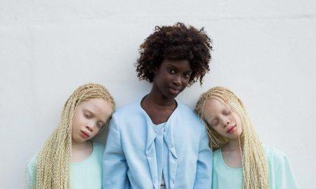Близнецы-альбиносы из Бразилии покорили мир моды своей необычной внешностью