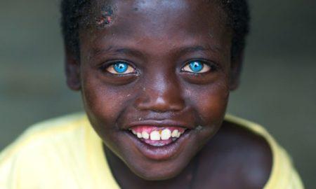 Этот мальчуган нищенствовал в трущобах Эфиопии, но теперь стал всемирной знаменитостью!