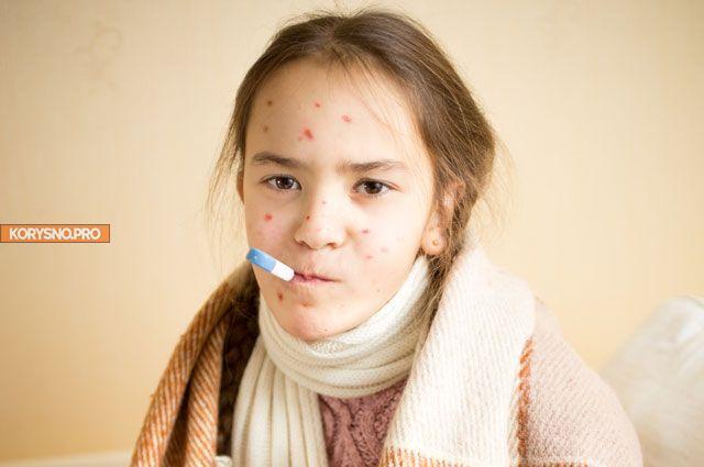 Корь и осложнения: нужно ли переболеть этой хворью еще в детстве?