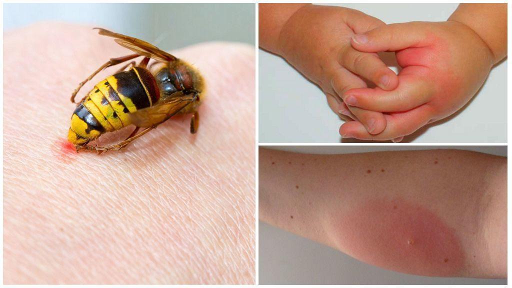 ВНИМАНИЕ!!! Укусы насекомых: 12 видов и что делать при каждом из них
